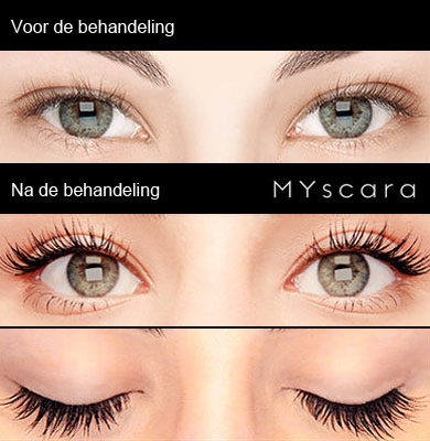 MYscara